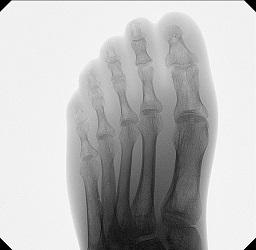2_tau_foot.jpg