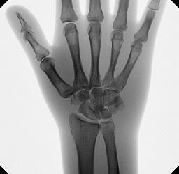 4_tau_wrist.jpg